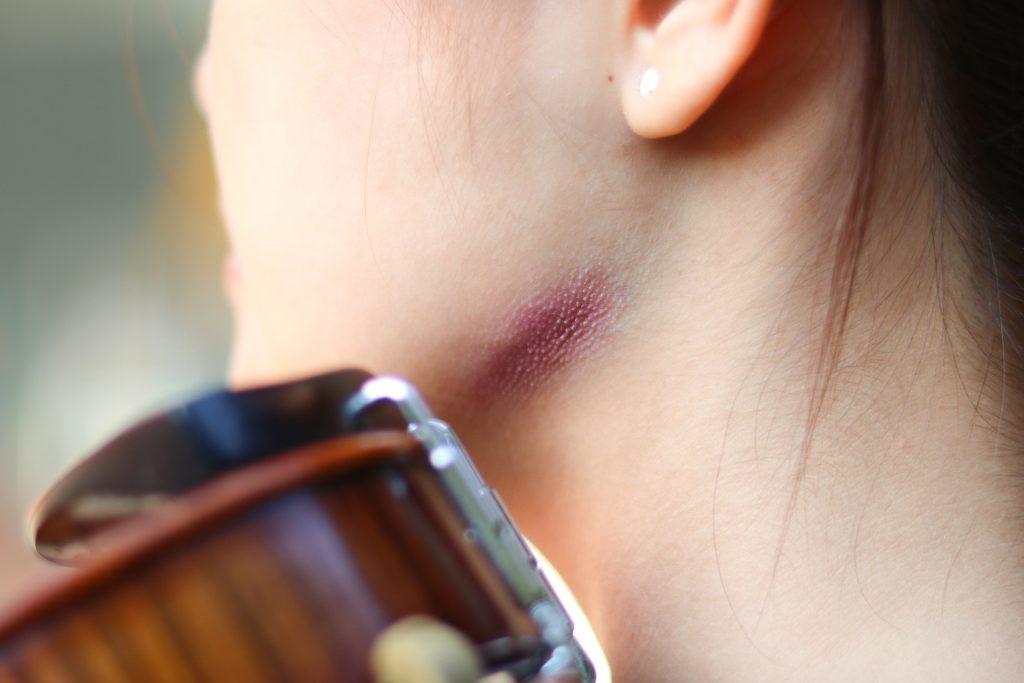 violinist injury